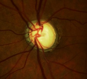 "This view is of an optic nerve with advanced glaucoma.  The center ""cup"" of the nerve is hollowed out which is evidence of constricted peripheral vision."
