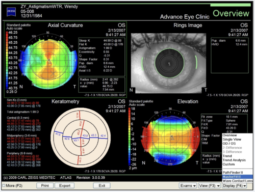 Corneal topography shows us if the curves of the cornea are too flat or too steep.  The pattern of these curves has a strong bearing on vision, as well as the patient's ability to get corneal refractive surgery such as LASIK.  All of our LASIK and PRK patients have corneal topography done prior to surgery.