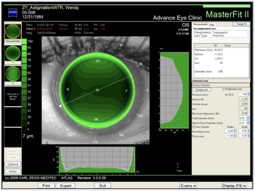 This image shows a corneal topographer's software running a contact lens simulation.  We can use this software to fit a contact lens virtually which allows for a more precise fit.