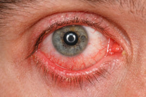 This eye has pink eye.  It features dilated blood vessels, and looks mildly painful.