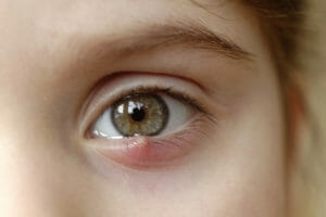 A young patient is seen with a reddish bump on her lower lid.  This painful infection is known as a stye.