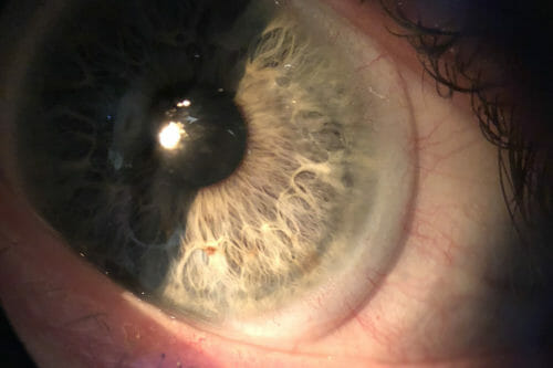 A close-up view of a scleral lens sitting on a patient's eye.