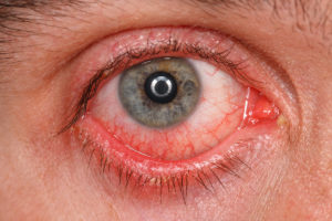 Bacterial Keratitis